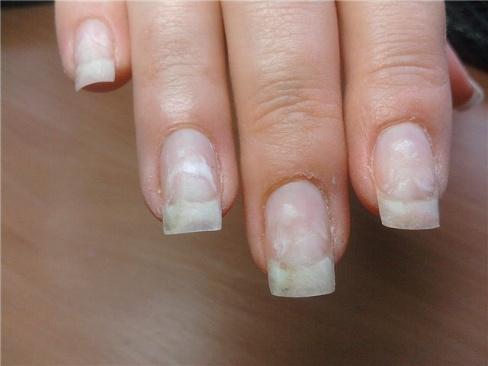 Почему возникают белые пятна на ногтях