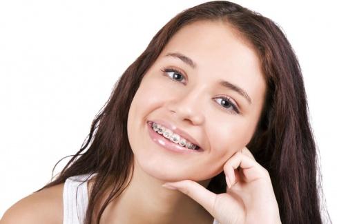 Красивая улыбка – залог успеха. А брекеты этому помогут