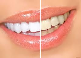 Преимущества и недостатки отбеливания зубов